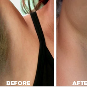 Five hacks to lighten dark armpits using natural home remedies