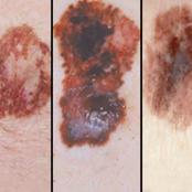 The case of Melanoma