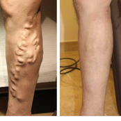 Always choose our left side and other things expectant women should do to avoid varicose veins.