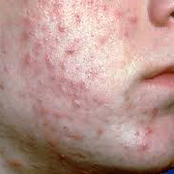 Avoid this food that will cause skin acne