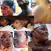 These PHOTOS Are Clear Facts That Bleaching Is A BAD Practice And Must Be Avoided At All Cost.