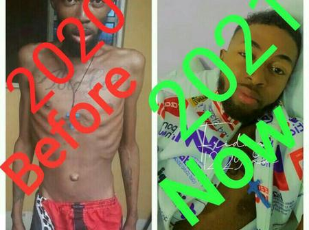After Bobrisky helped pay his treatment bill for leukemia blood cancer, see how healthy he is now.