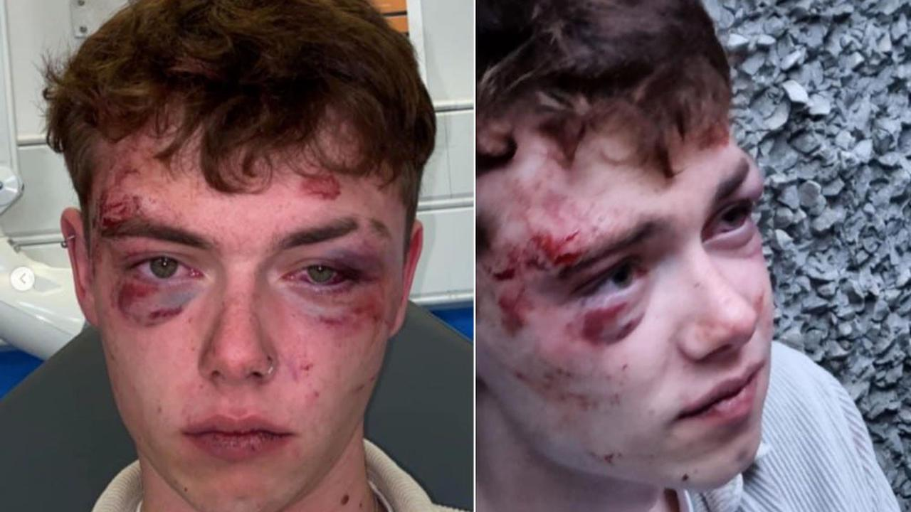 Bisexual student battered in 'unprovoked and completely random' homophobic street attack