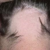 Reasons Why Men Mostly Suffers From Hair Lose (Baldness) Compared to Women