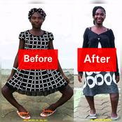 Meet 14 Years Old Girl Who Was Once Called A Witch Because Of Her Leg; See Her New Legs(Photos)