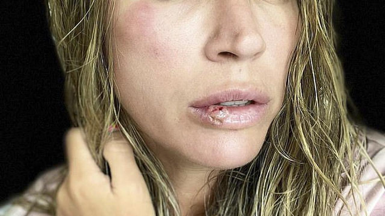 Teddi Mellencamp shows off her battered face and cut lip after sharing that she FAINTED in the middle of the night from a vertigo attack