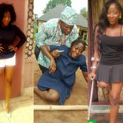 See 25 Adorable Photos Of The Nigerian Actress Who Lost Her Leg Years Ago