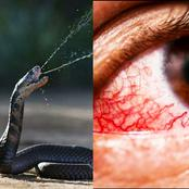 What Snake Venom Does To Your Eyes And What You Should Do To Save Your Eyesight If You Are Spat At