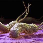 احذر  إذا ظهرت عليك هذه العلامات فإن الجرثومة الحلزونية تعيش داخل أمعائك.. إليك طرق العلاج