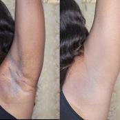 Natural ways to prevent and lighten dark underarms
