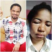I Don't Think Odumeje Is Responsible For Ada Jesus's Illness, Read What Causes Kidney Problems