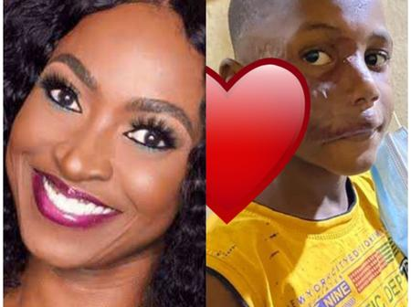 Little Boy With Facial Tumour Is Healthy And Grown - Kate Henshaw
