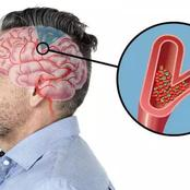 10 Warning Signs That Show Stroke Is Coming