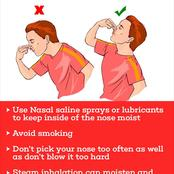 See The Major Cause Of Nosebleeds And How To Prevent It