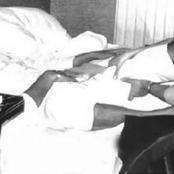 عملية تجميل غيرت حياته ومرض نادر حير العلماء.. نهاية حزينة لمحمد فوزي