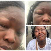 Bolt Driver Allegedly Beat Up This Lady And Her Sister Because Of 200 Naira