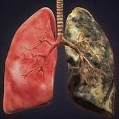 Lung cancer kills: if you love your lungs, avoid the excess intake of these three things.