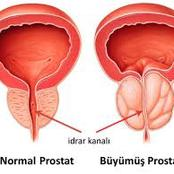 Prostate Enlargement: If You Are Above 50 Years And Notice These 13 Signs, Go And See Your Doctor