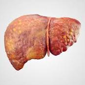 Avoid Too Much Intake Of These 5 Foods, There Can Damage Your Liver