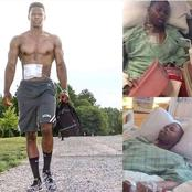 Inspiring: After A Successful Heart Transplant, Man Proudly Carries His Artificial Heart In A Bag