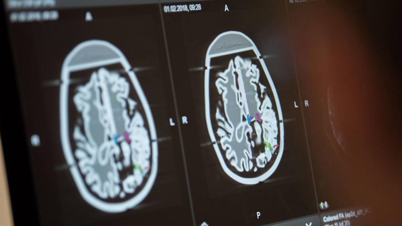 Expert Explains How Spanking Affects Children's Brains