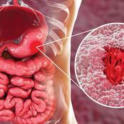 هذه الأعراض تخبرك أنك مصاب بجرثومة المعدة