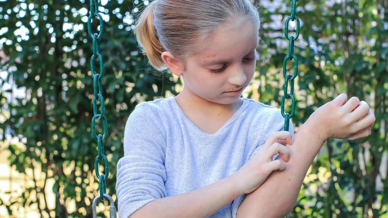 Viele Kinder leiden an Neurodermitis – häufig sind die Eltern ein Grund dafür