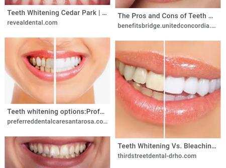 Is Bleaching the Best Method of Home Teeth Whitening?