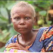 Painful Story Of 'Dying' Woman Who Is Aging Fast, Has Painful Legs With Wounds And Grey Hair