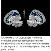 Incredible Discovery On Similarities In The Brain Of Murderers