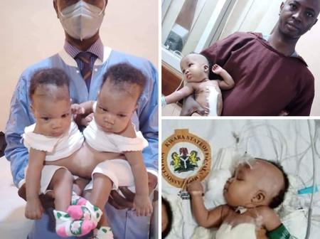 Nigerian Doctor Separated Female conjoined twins successfully [Photos]