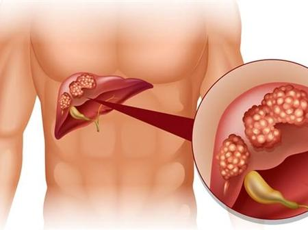 If You Don't Want To Suffer Liver Cancer, Avoid Too Much Intake Of These 4 Things