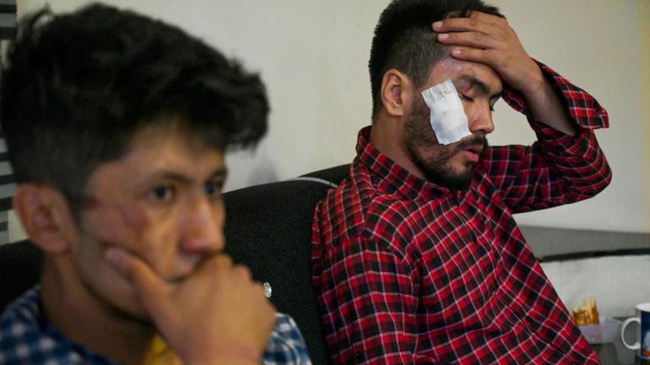 A Kaboul, quatre heures en enfer pour des journalistes afghans tabassés par les talibans