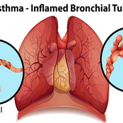 Asthma Symptoms and Long Term Control of Asthma