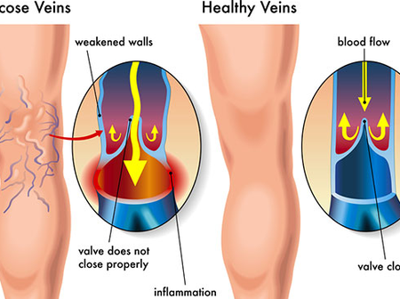 Garlic Prevents Inflammation, a Cause of Varicose Veins. How to Make Garlic Oil