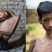See before and after surgery pictures of this young boy