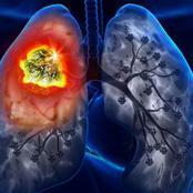 إذا ظهرت عليك هذه العلامات فأنت مصاب بسرطان الرئة وتحتاج إلى التدخل الطبي العاجل لإنقاذ حياتك