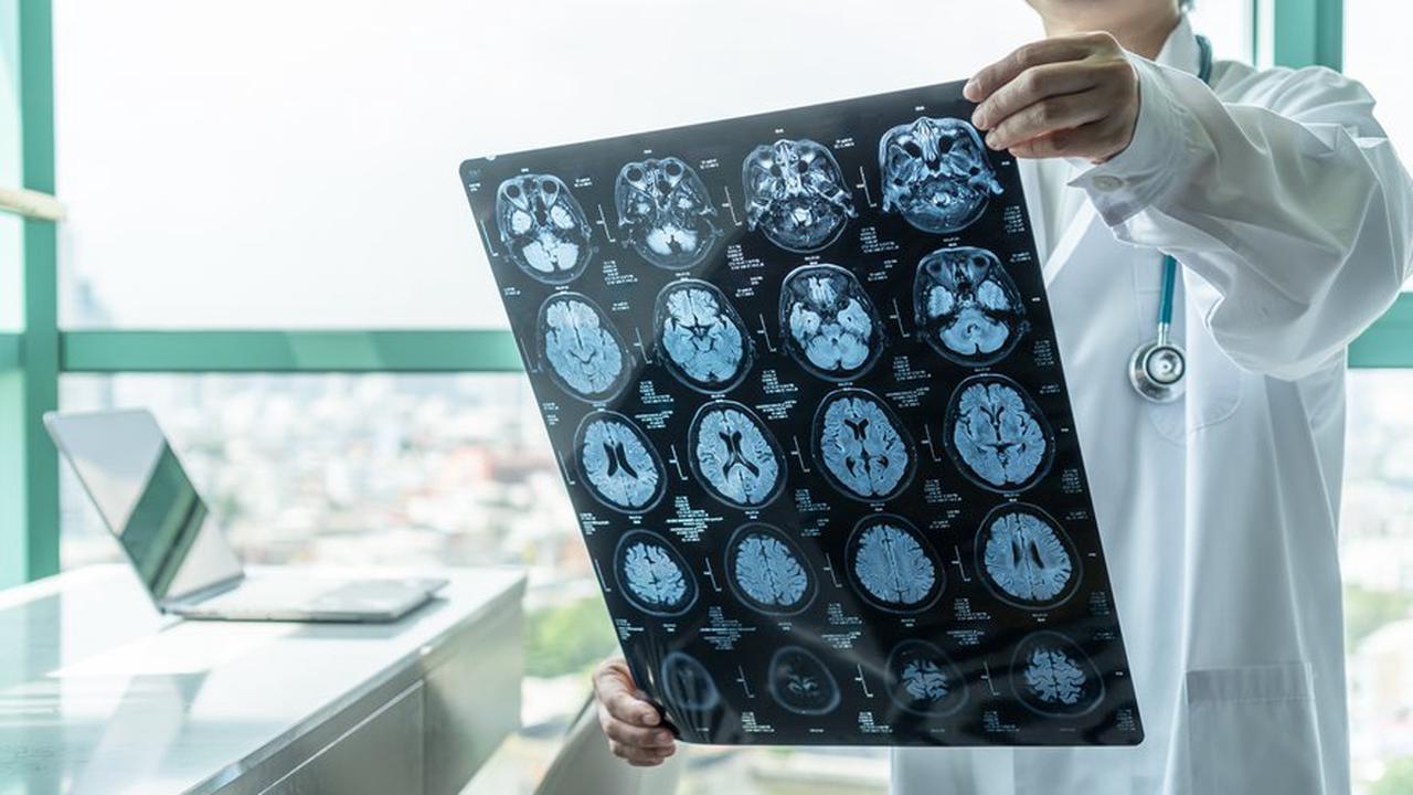 Maladie d'Alzheimer : l'espoir venu d'Amérique