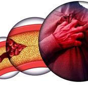 تحذير...اذا ظهرت هذه العلامات عليك أنت في خطر فأنت تعاني من زيادة الكوليسترول في الدم