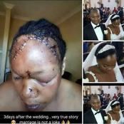 Must See :3 days after the Wedding he did this to her / opinion