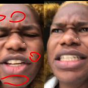 NBA Gboy Blasts Fans After He Was Trolled For Having Pimples All Over His Face, Read What He Said