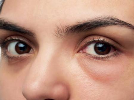 6 ways to get rid of puffy eyes and bags under your eyes.