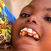 Meet 13 Yrs Old Cynthia Born With 70 Teeth. She Can't Talk, Walk, Sit And Bullies Call Her Crocodile