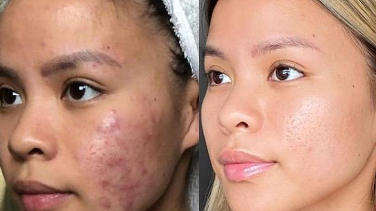 I was called 'pizza face' due my severe acne and struggled getting out of bed – but I finally cleared my blemishes