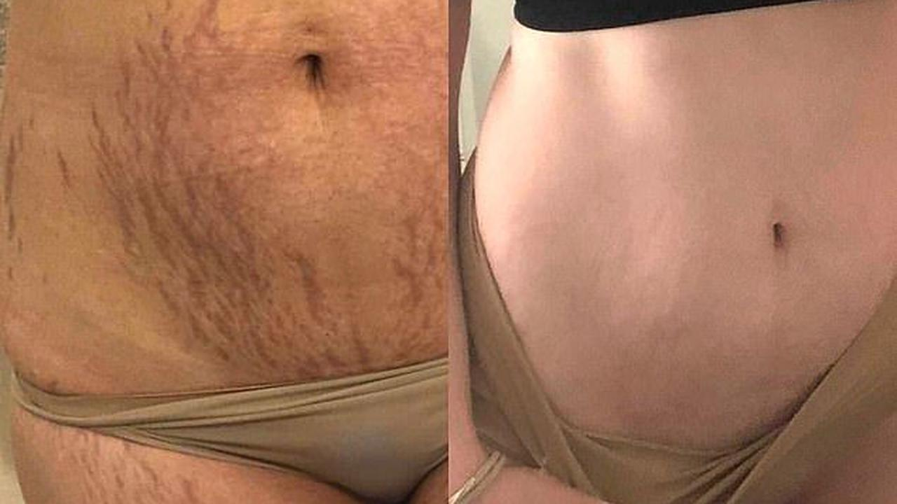 REVEALED: The miracle $9.95 beauty buy shoppers are swearing by for getting rid of their stretch marks and scars for good