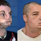 Meet The Man With The Most Successful Face Transplant Ever