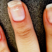 White spots and vertical ridges on your fingernails? This is what they show about your health
