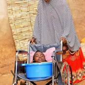 Meet Rahma, The Girl Who Lived In A Plastic Bowl All Her Life (With Pictures)