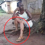 This Black Woman Want to turn Herself to a White Woman- See What Happened to Her Body