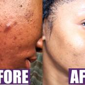 How to use green bar to remove pimples